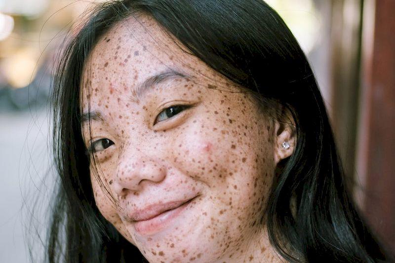 проблемы с кожей